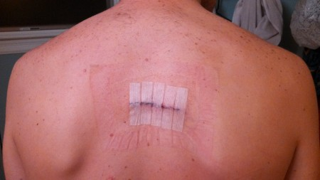 Back-no-bandage
